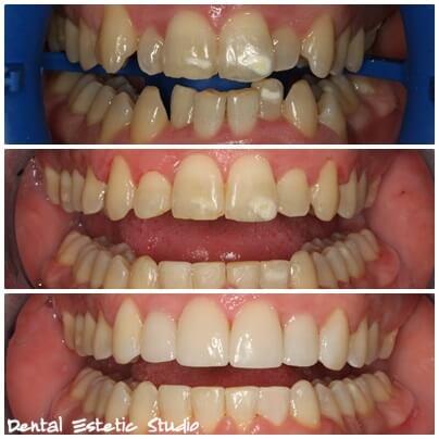 ästhetische Korrektur der Zähne