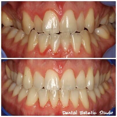 braces fixed