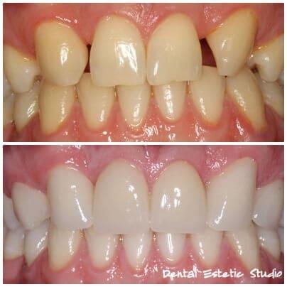 die Zähne die zwei Zähne furniert