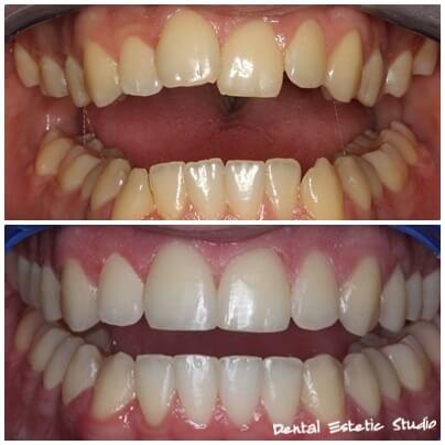 festsitzende Zahnspange