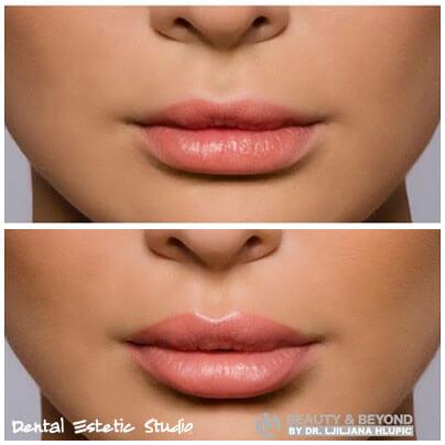 Hyaluron Lippen