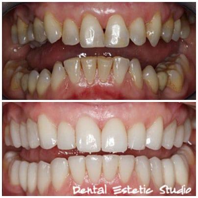 Prothetik Zahn Furniere