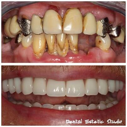 Zähne 4 Implantate